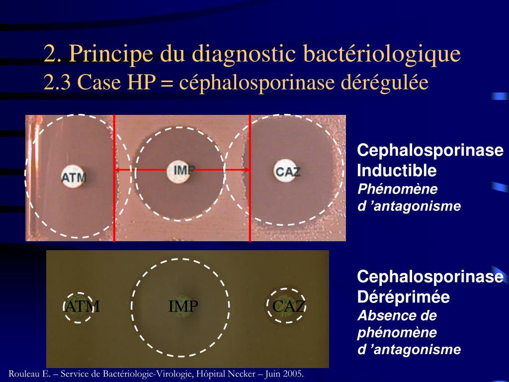 2. Principe du diagnostic bactériologique