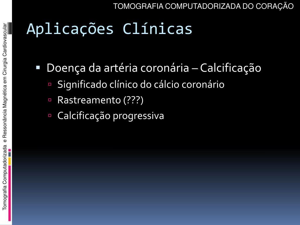 TOMOGRAFIA COMPUTADORIZADA DO CORAÇÃO