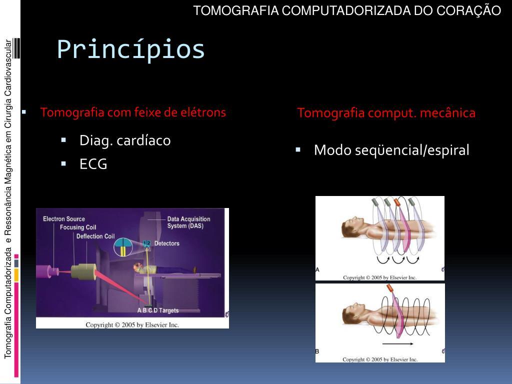 Tomografia comput. mecânica