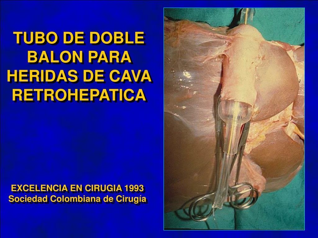 TUBO DE DOBLE BALON PARA HERIDAS DE CAVA RETROHEPATICA