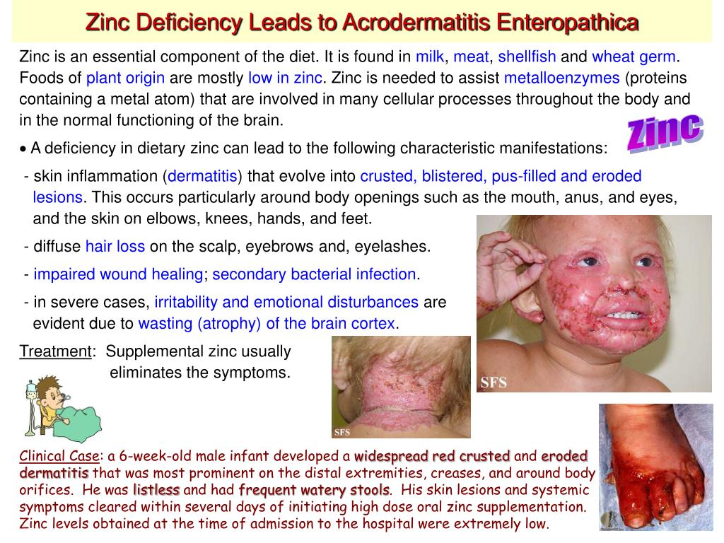 Frequent masturbation leads to zinc deficiency