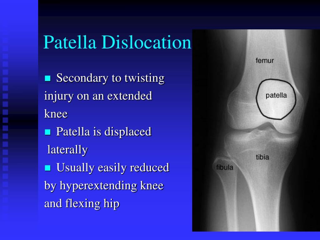 patella dislocation