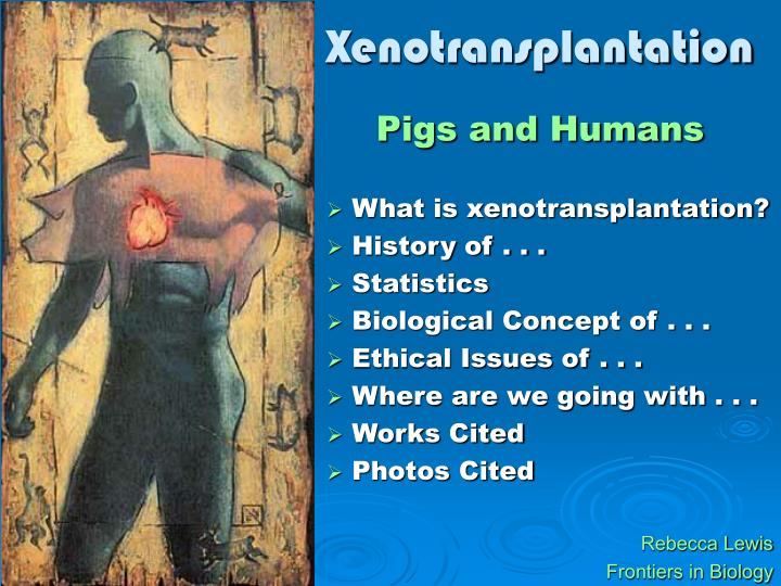 reason for xenotransplantation There is consensus, among those involved in the field of clinical transplantation, that a need exists for a larger pool of organ donors efforts to enlarge the.