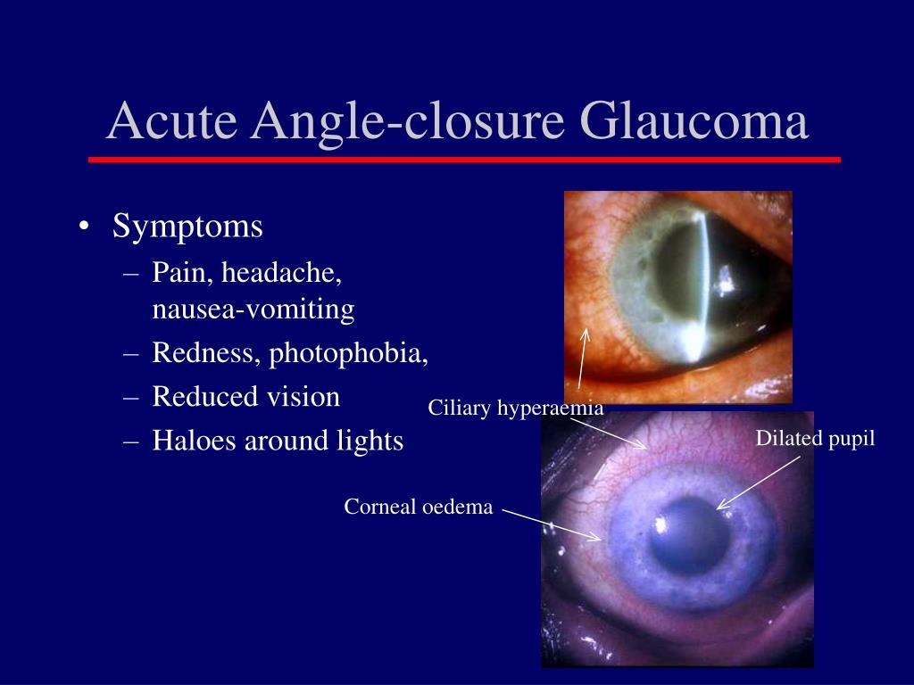 Acute Angle-closure Glaucoma