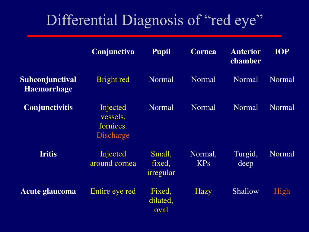 """Differential Diagnosis of """"red eye"""""""