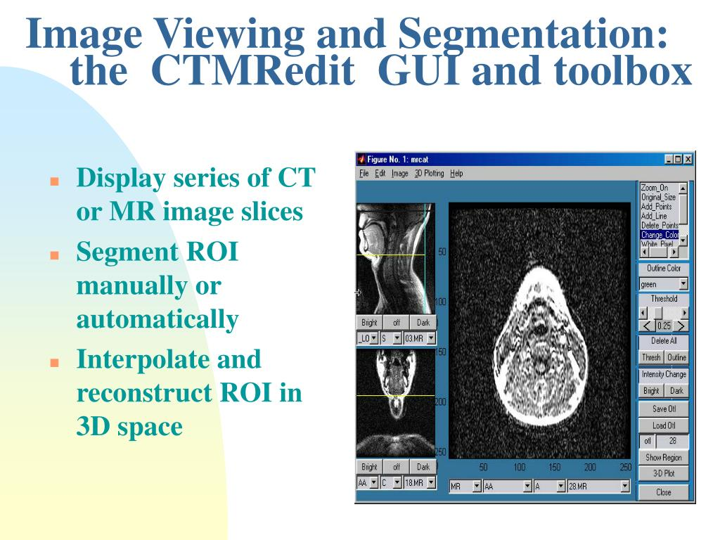 Image Viewing and Segmentation: