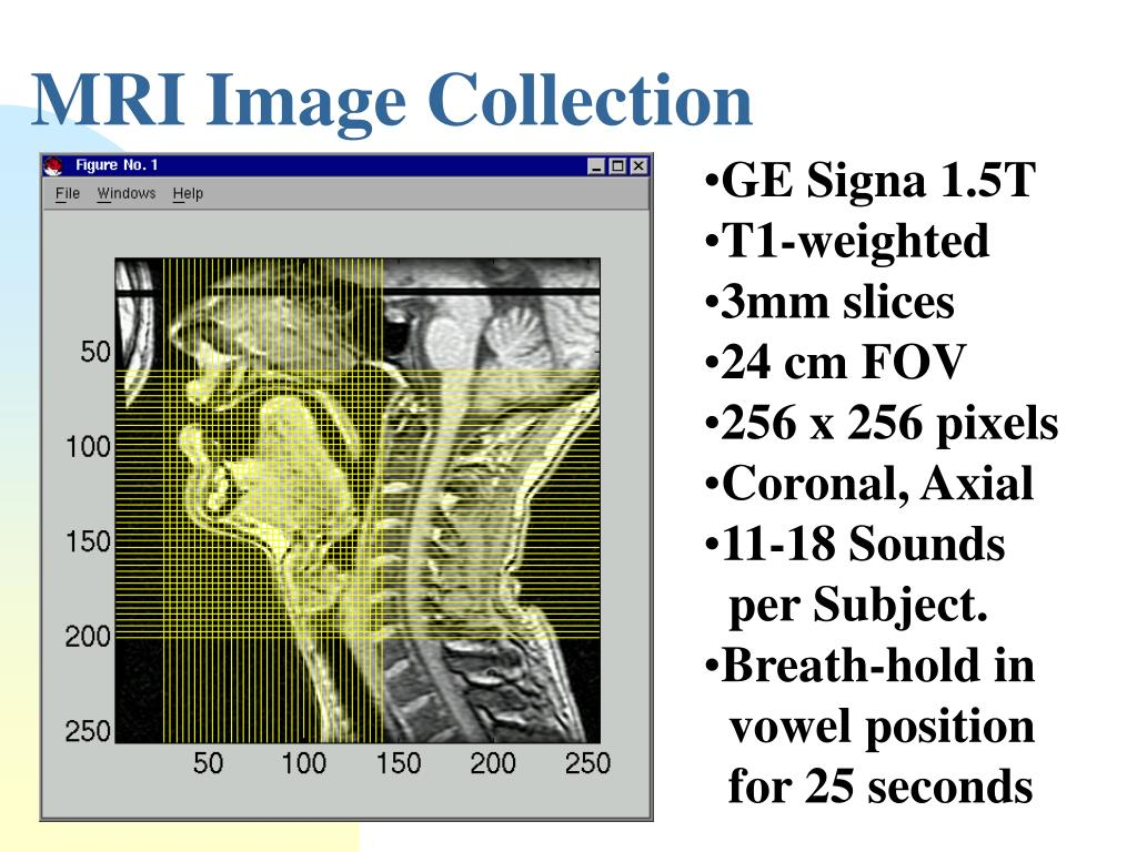 MRI Image Collection