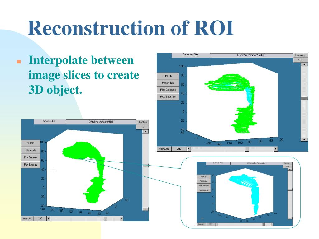 Reconstruction of ROI