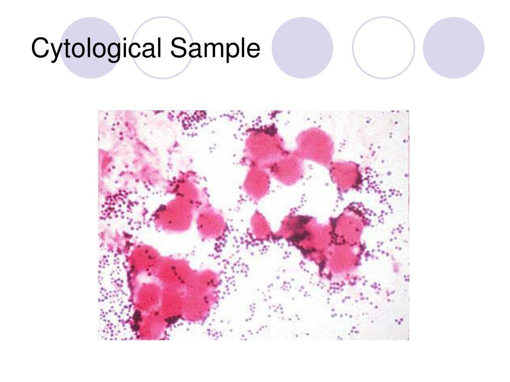 Cytological Sample