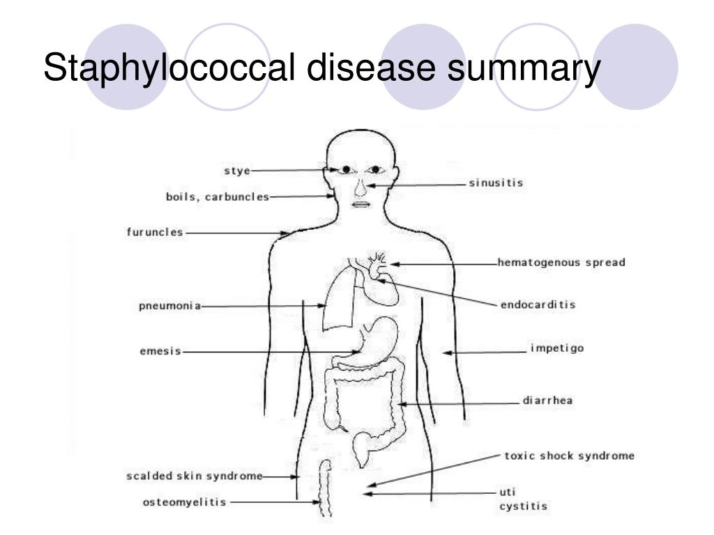 Staphylococcal disease summary