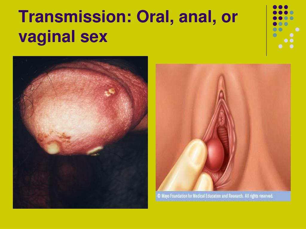 Transmission: Oral, anal, or vaginal sex