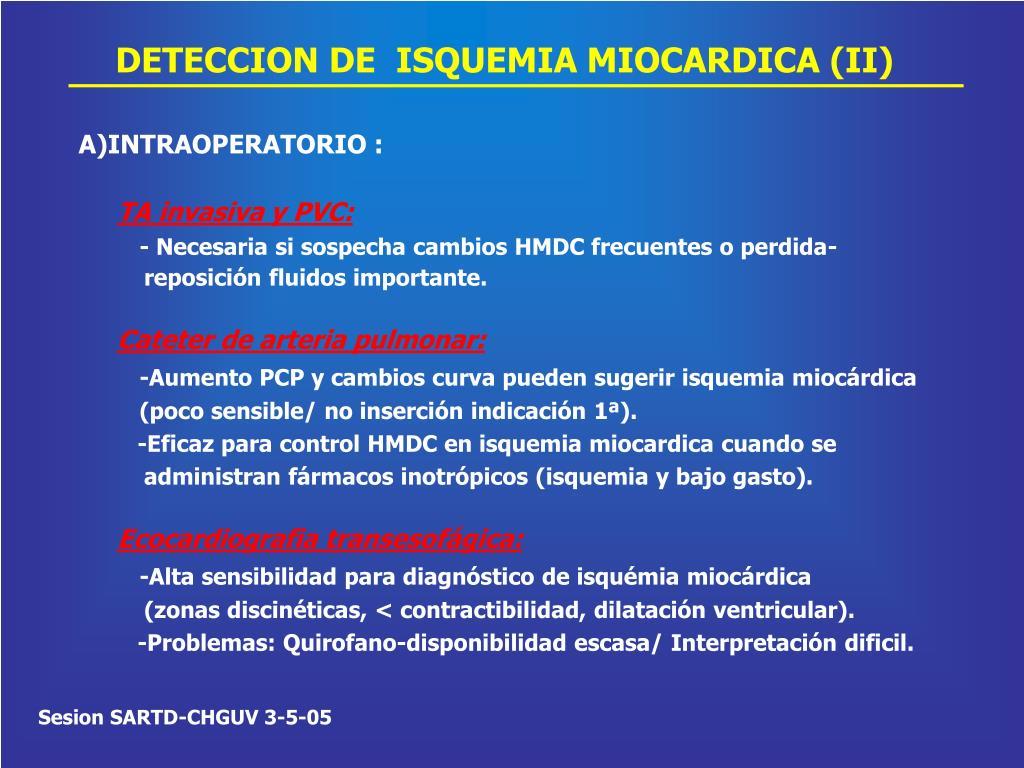 DETECCION DE  ISQUEMIA MIOCARDICA (II)