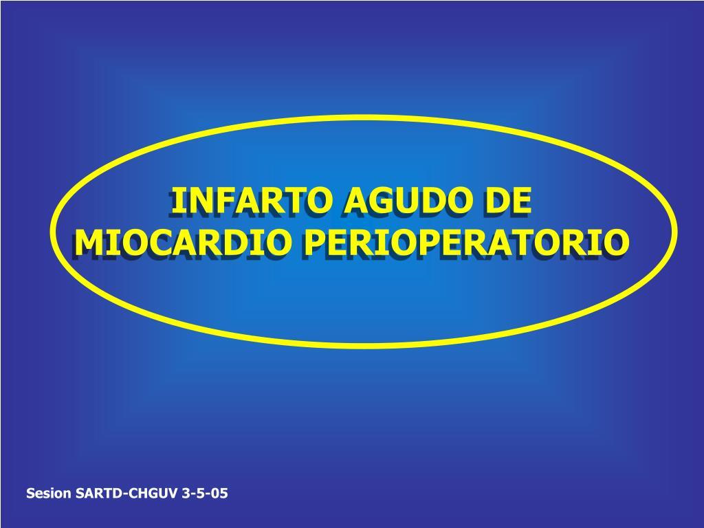 INFARTO AGUDO DE MIOCARDIO PERIOPERATORIO