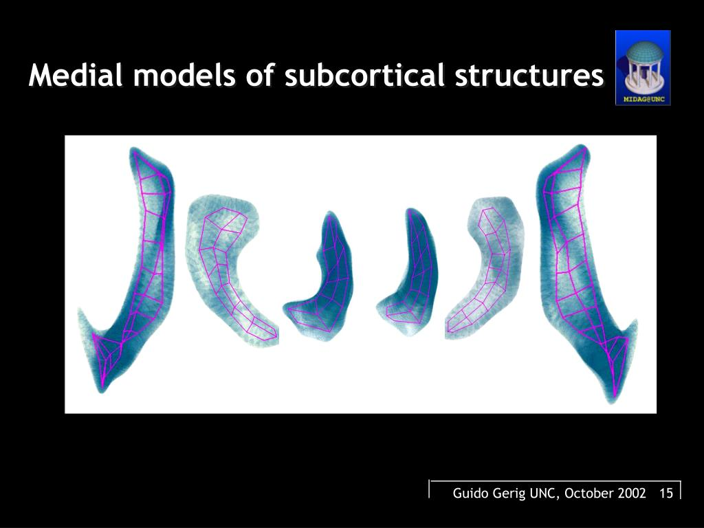 Medial models of subcortical structures
