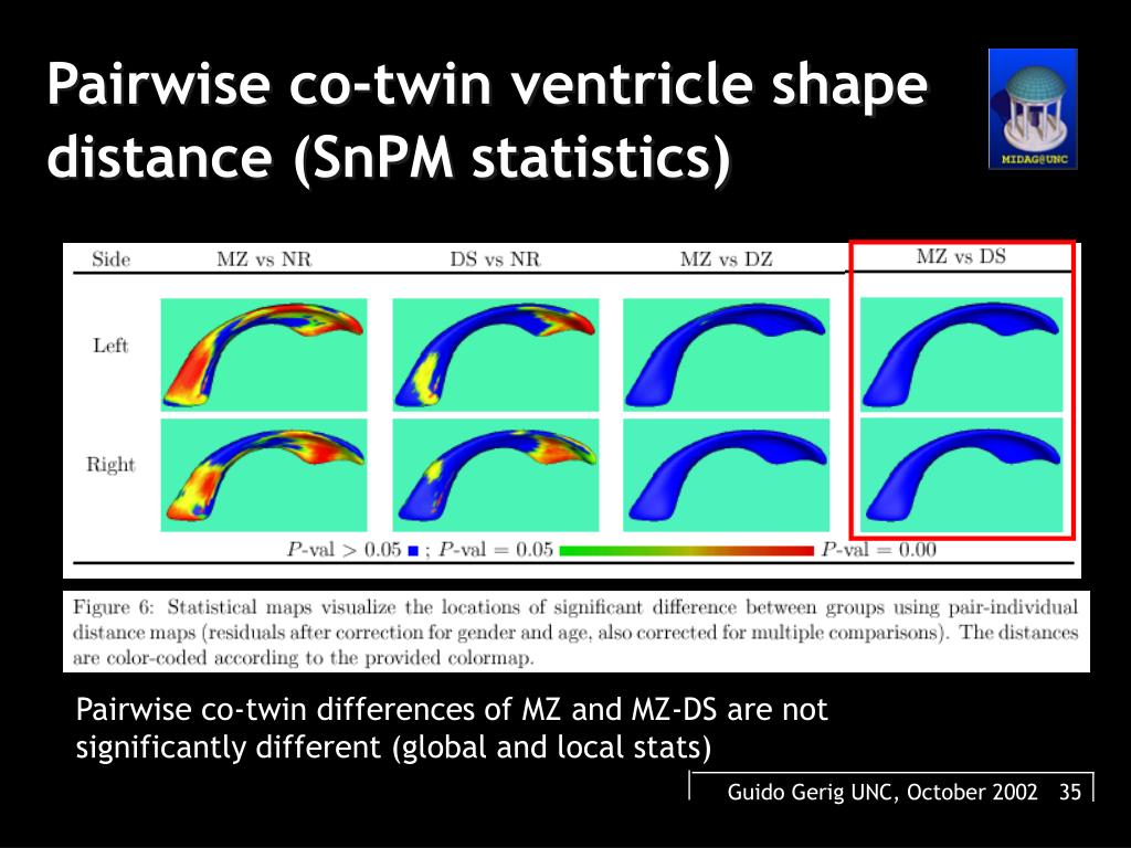 Pairwise co-twin ventricle shape distance (SnPM statistics)