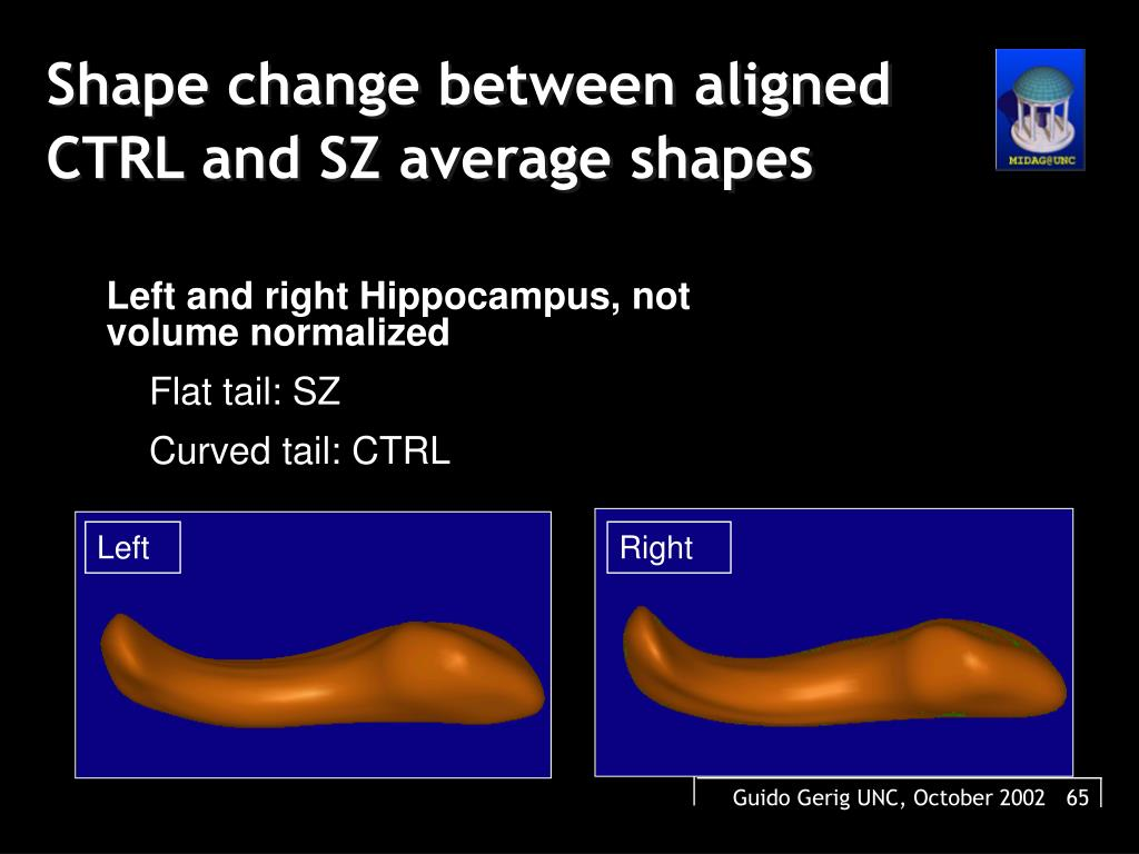 Shape change between aligned CTRL and SZ average shapes
