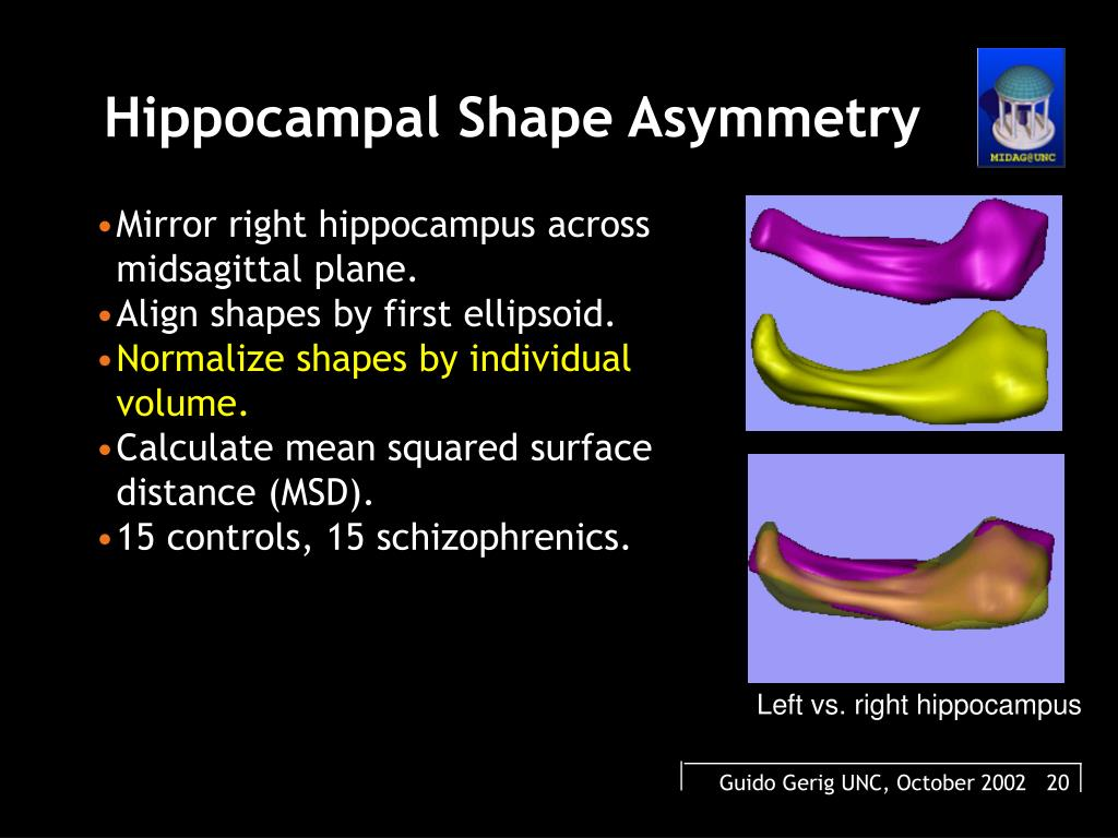 Hippocampal Shape Asymmetry