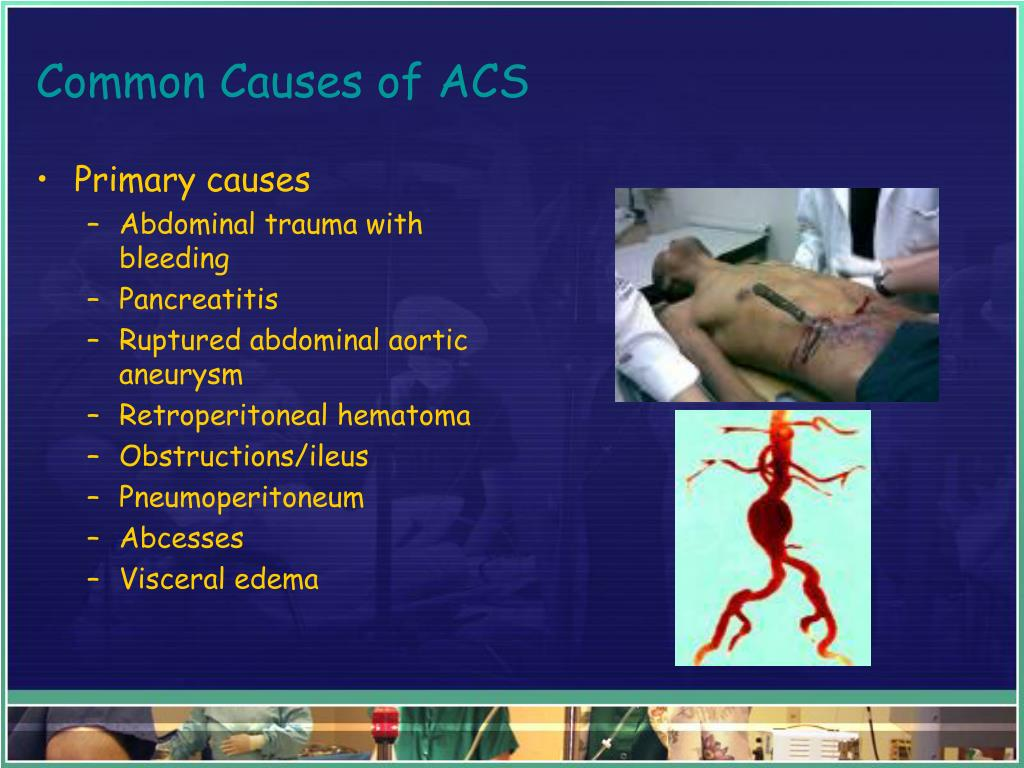 Common Causes of ACS