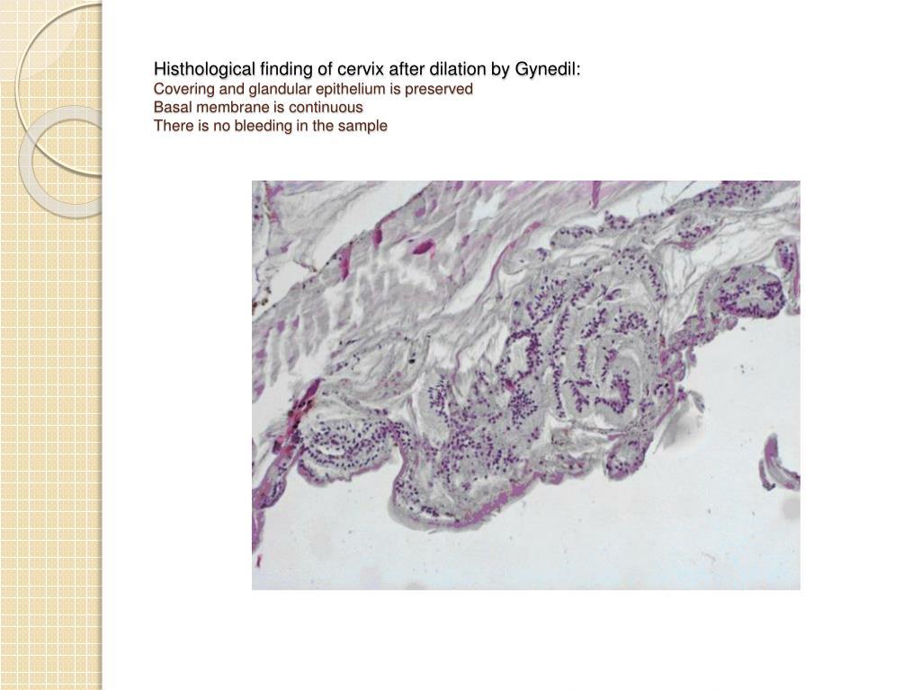 Histhological