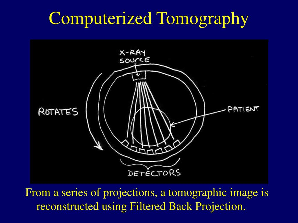From a series of projections, a tomographic image is reconstructed using Filtered Back Projection.