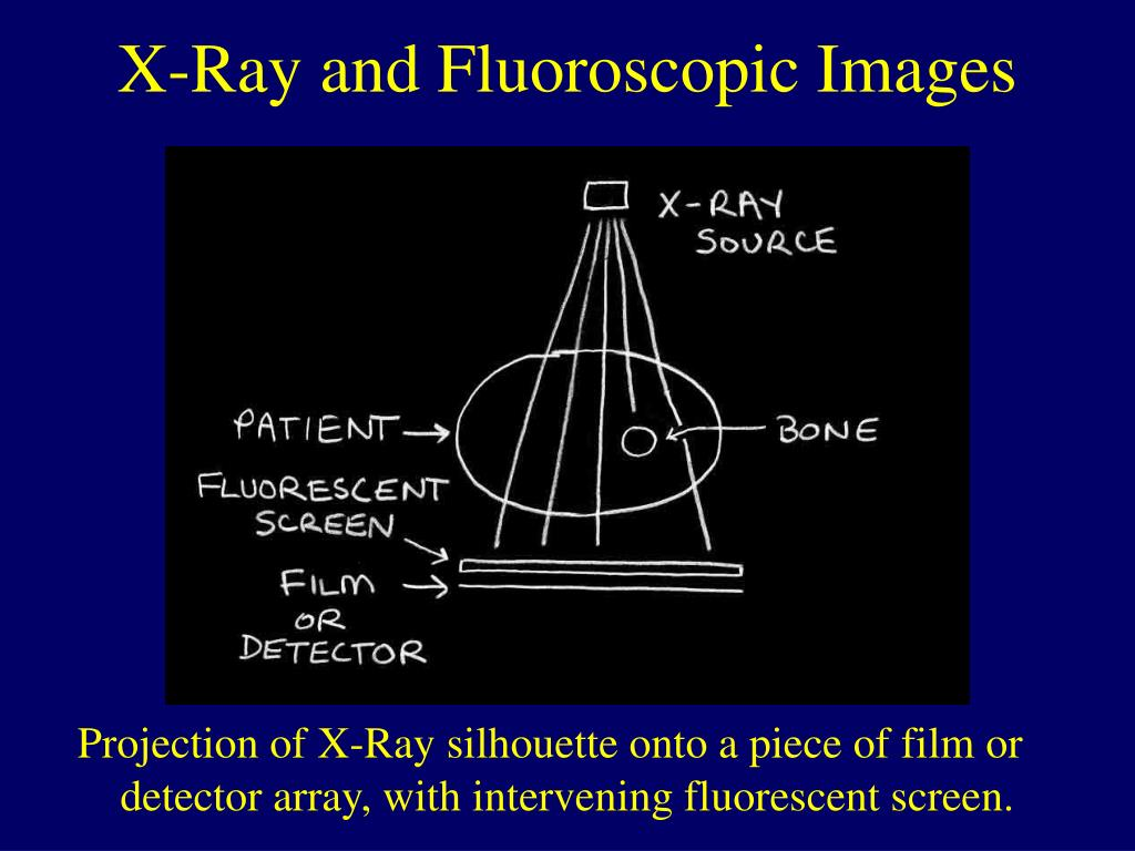 Projection of X-Ray silhouette onto a piece of film or detector array, with intervening fluorescent screen.