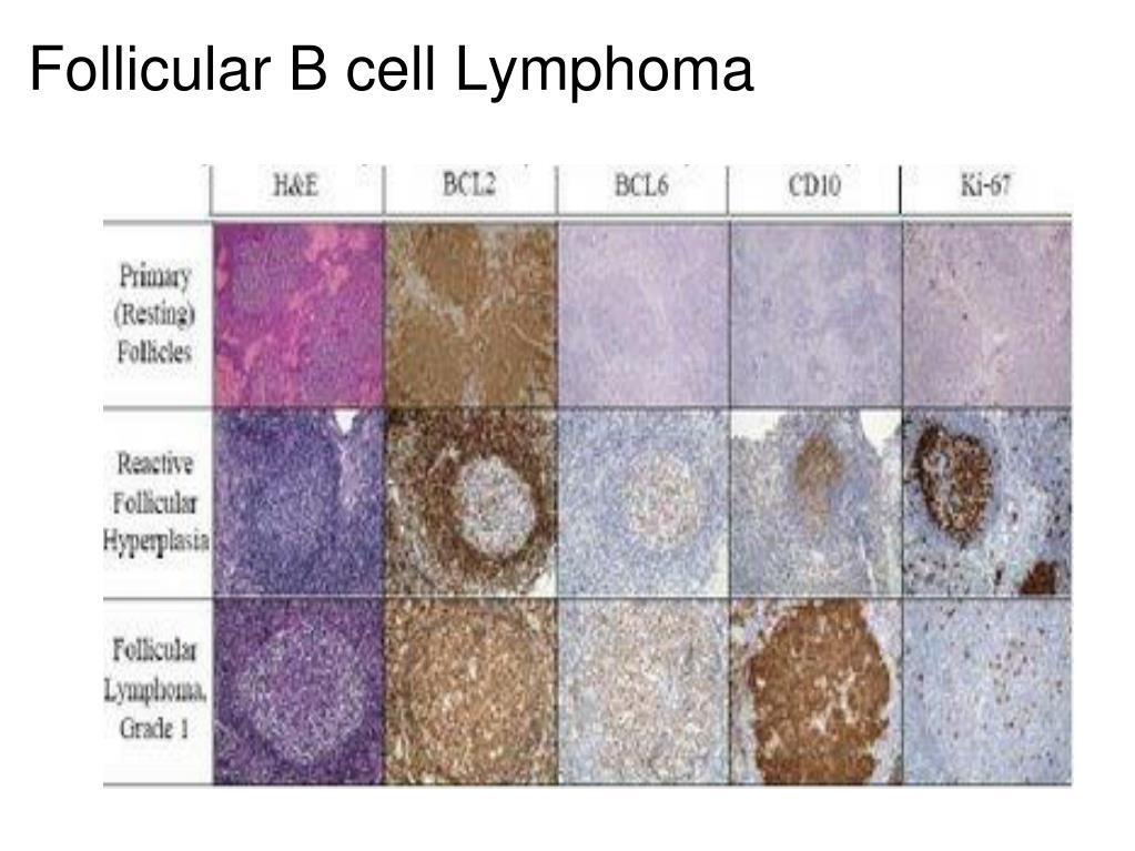 Follicular B cell Lymphoma