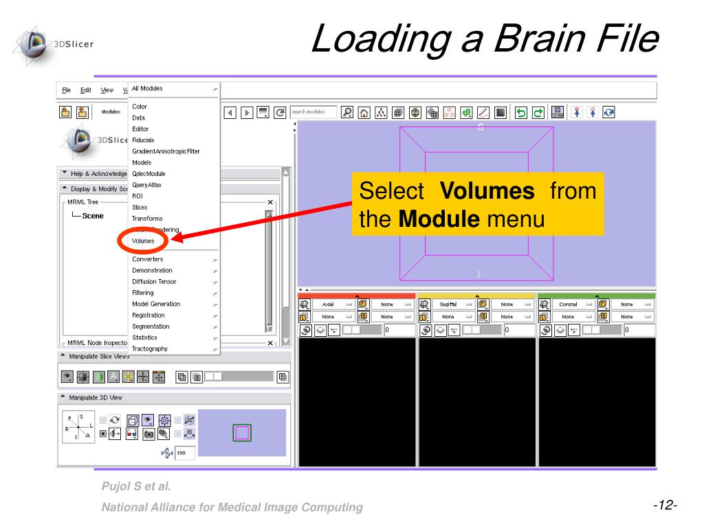 Loading a Brain File