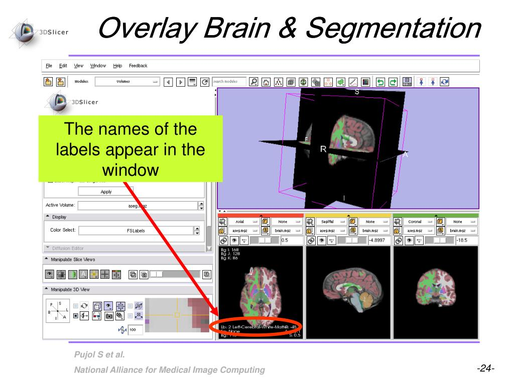 Overlay Brain & Segmentation