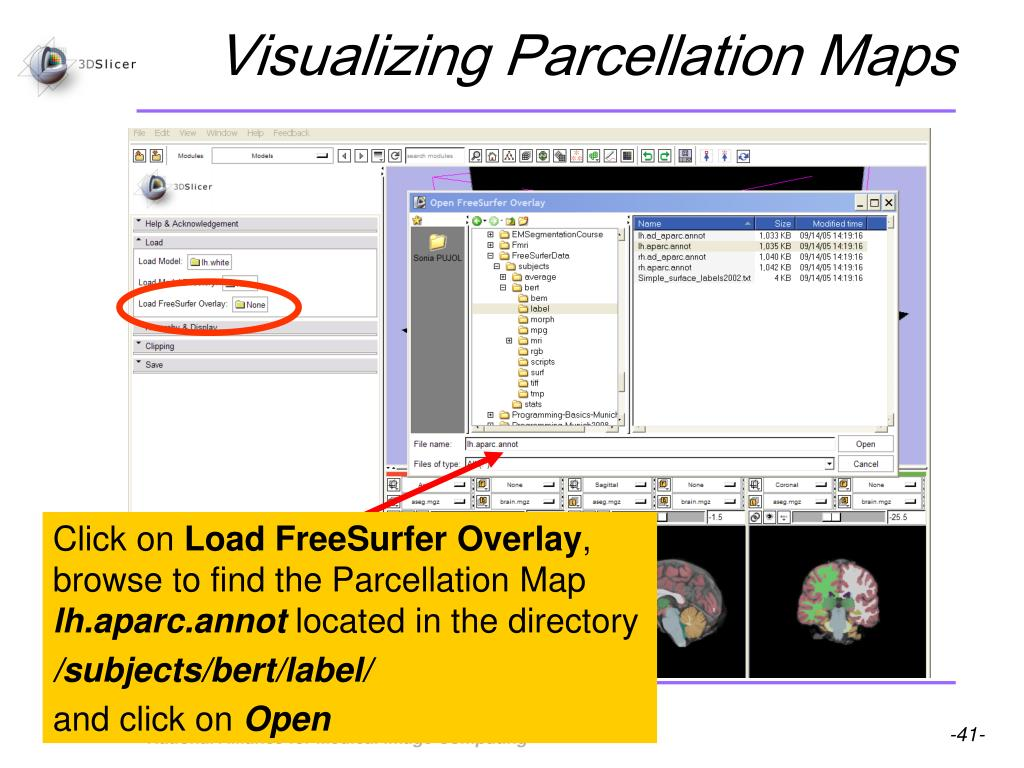 Visualizing Parcellation Maps