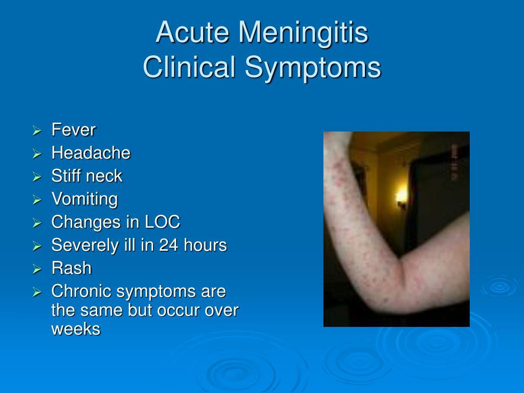 Acute Meningitis
