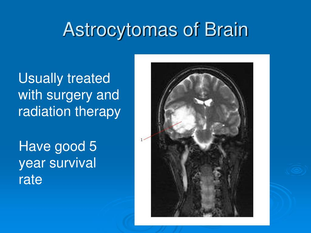 Astrocytomas of Brain