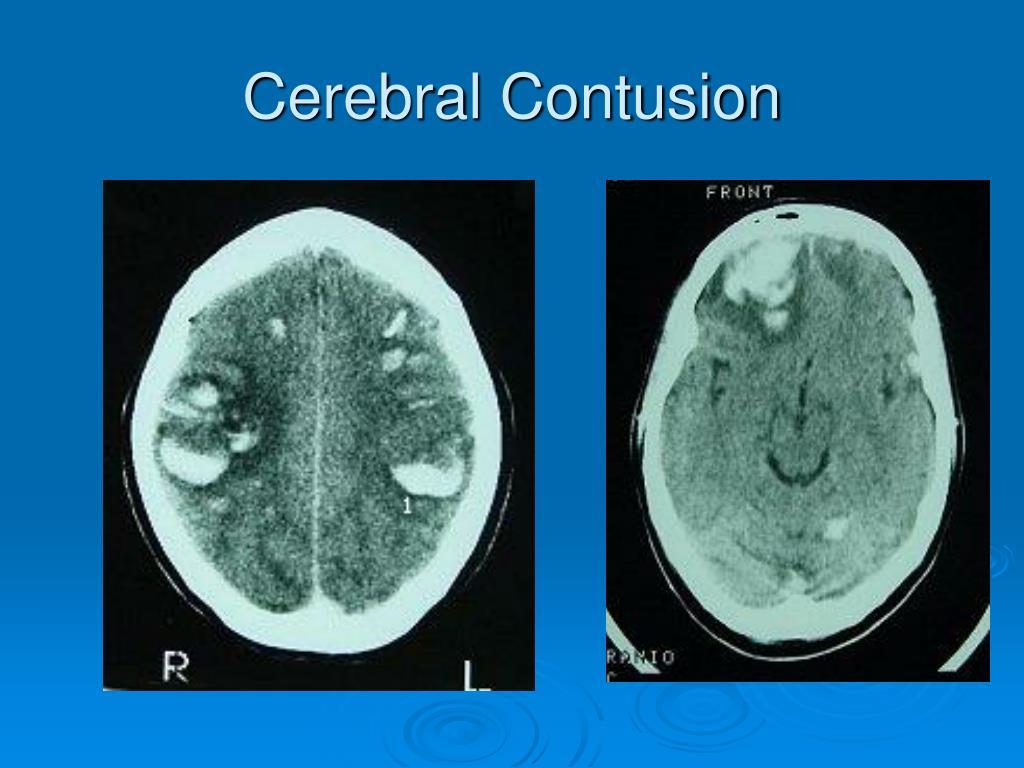 Cerebral Contusion