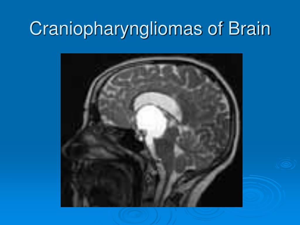 Craniopharyngliomas of Brain