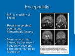 encephalitis10