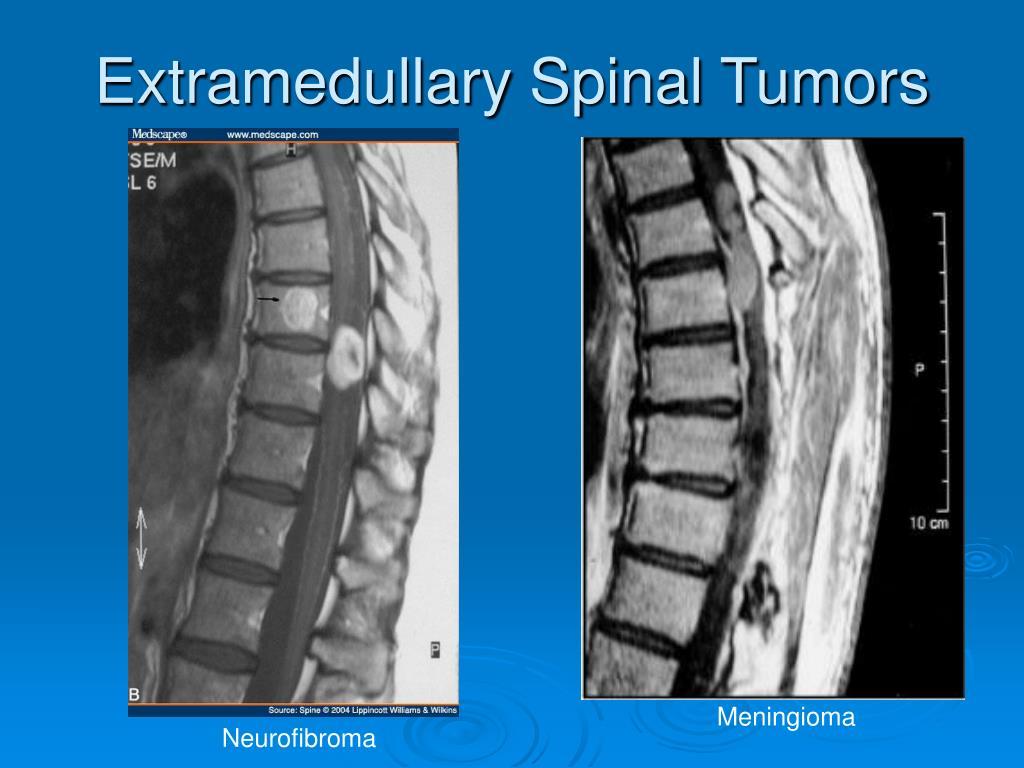 Extramedullary Spinal Tumors