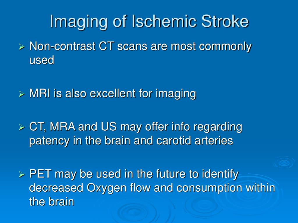 Imaging of Ischemic Stroke