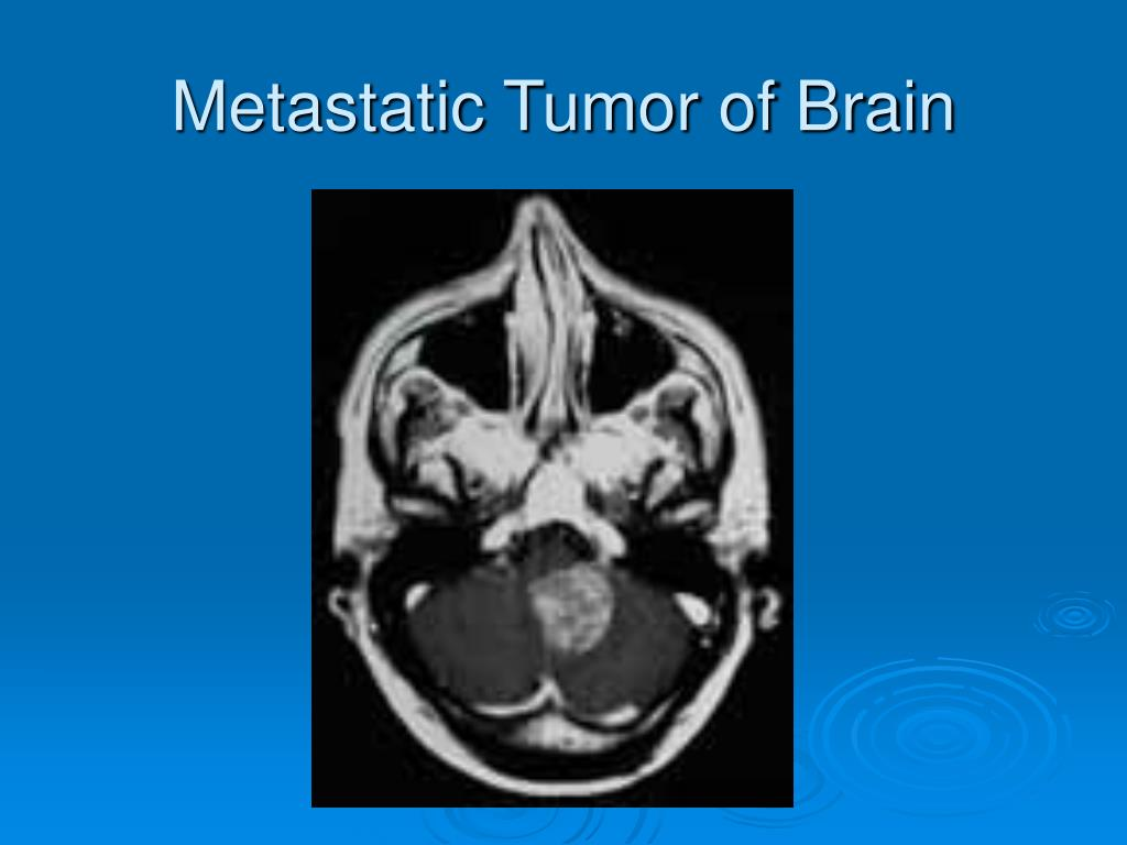 Metastatic Tumor of Brain