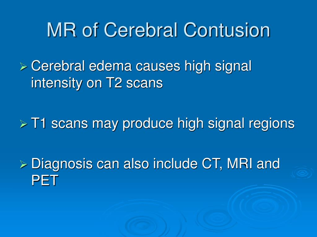MR of Cerebral Contusion