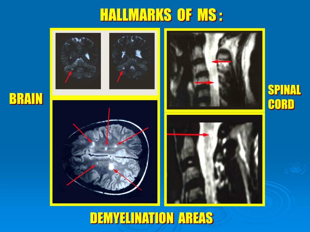 HALLMARKS  OF  MS :