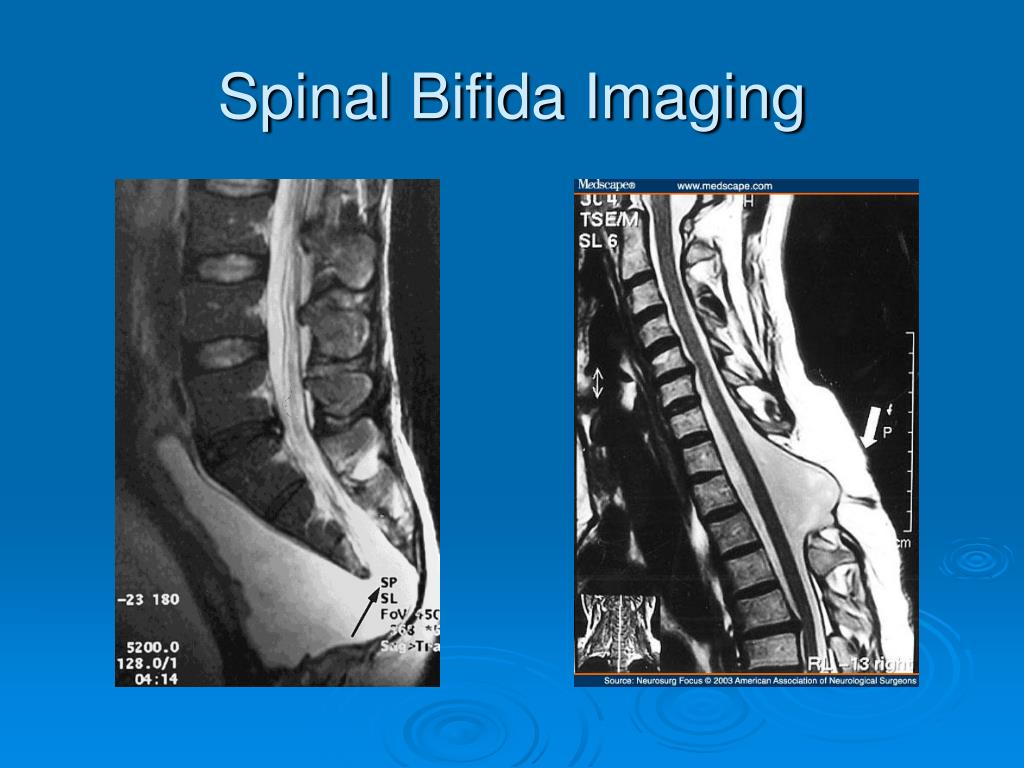 Spinal Bifida Imaging