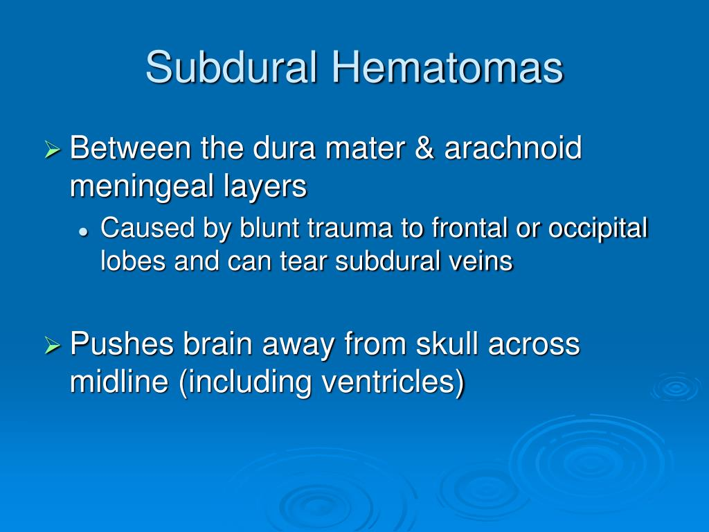 Subdural Hematomas