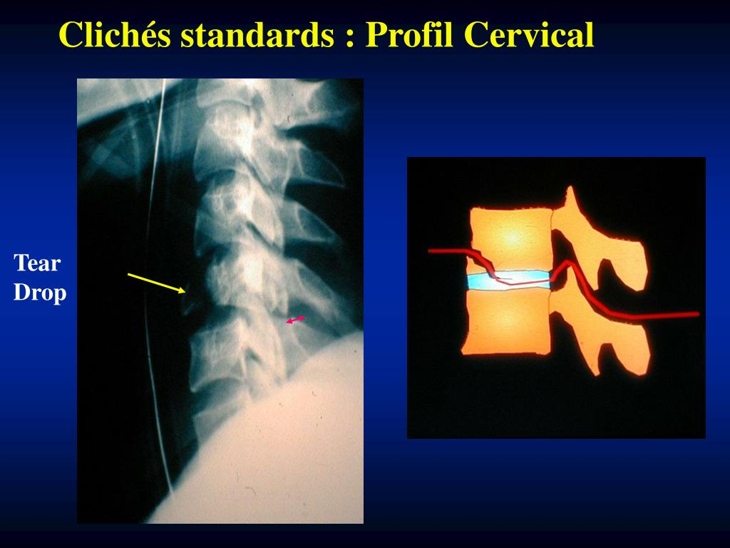 Clichés standards : Profil Cervical