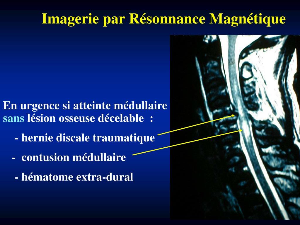 Imagerie par Résonnance Magnétique
