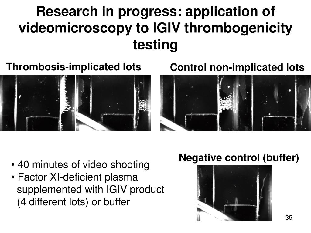 Research in progress: application of videomicroscopy to IGIV thrombogenicity testing