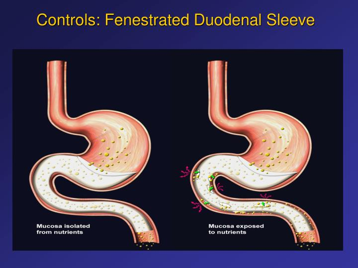Controls fenestrated duodenal sleeve l.jpg