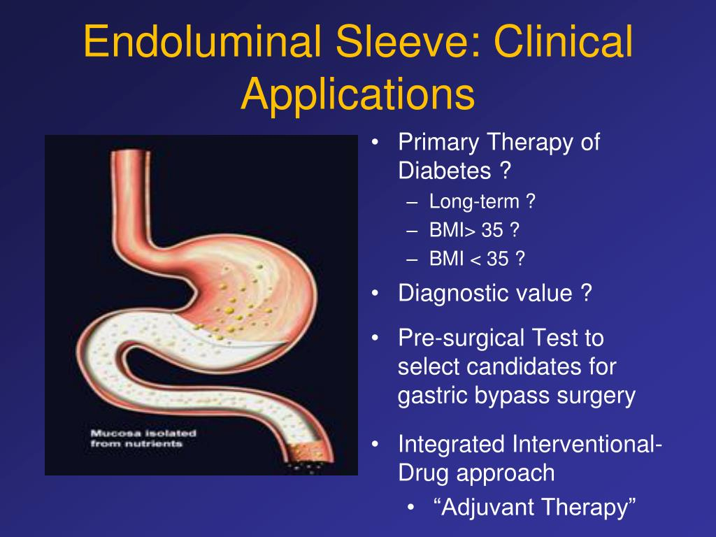 Endoluminal Sleeve: Clinical Applications