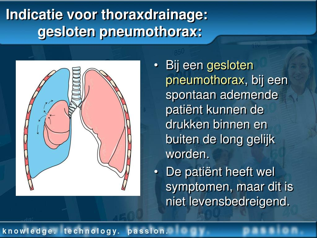 PPT - Omgaan met Thoraxdrainage PowerPoint Presentation ...