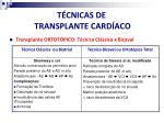 t cnicas de transplante card aco