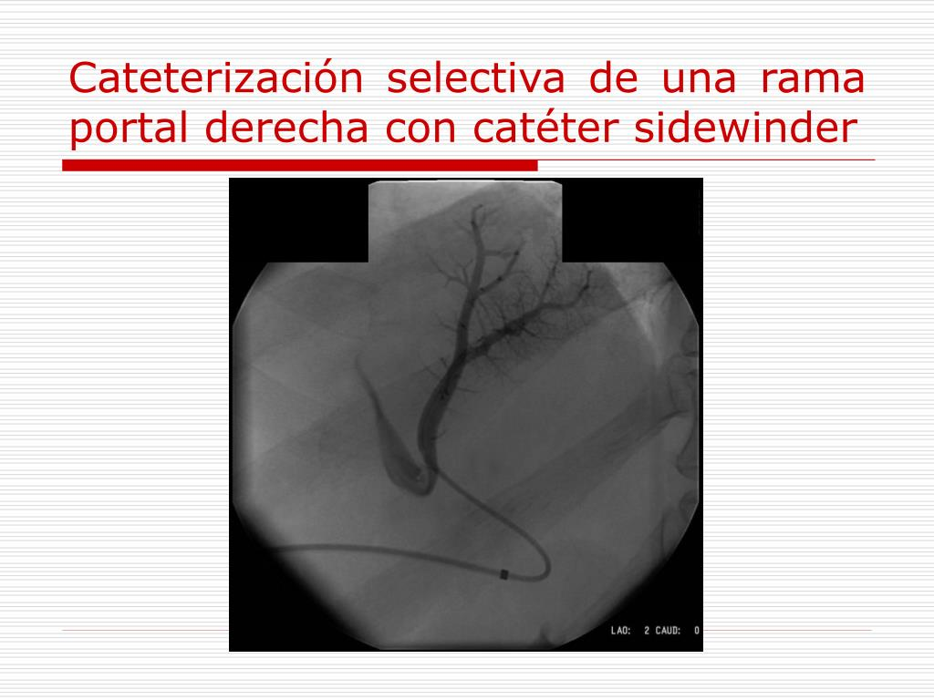 Cateterización selectiva de una rama portal derecha con catéter sidewinder