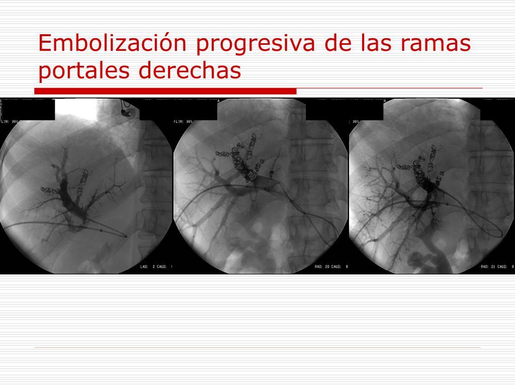 Embolización progresiva de las ramas portales derechas
